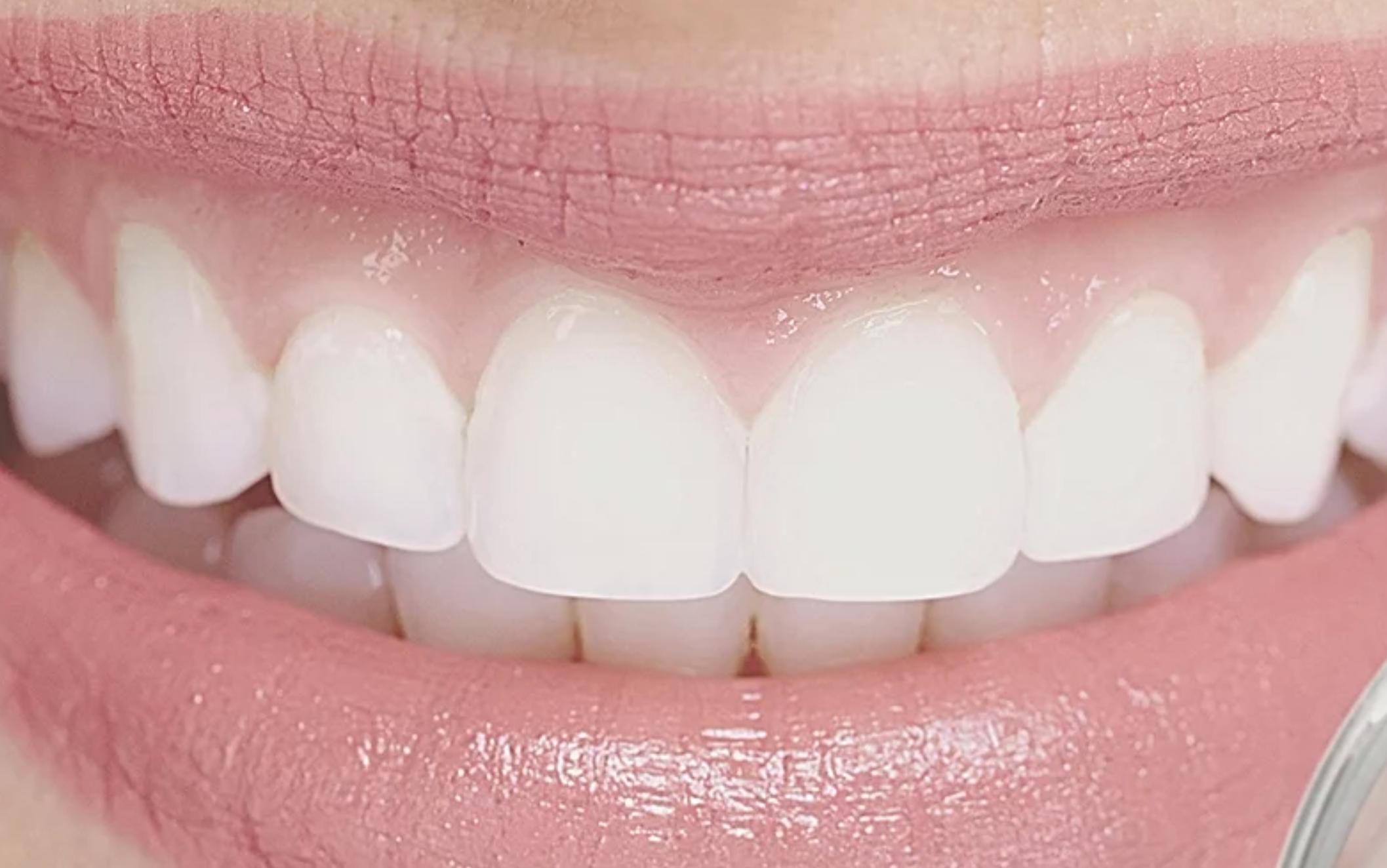 Image 3 | Custom Dental Laboratory