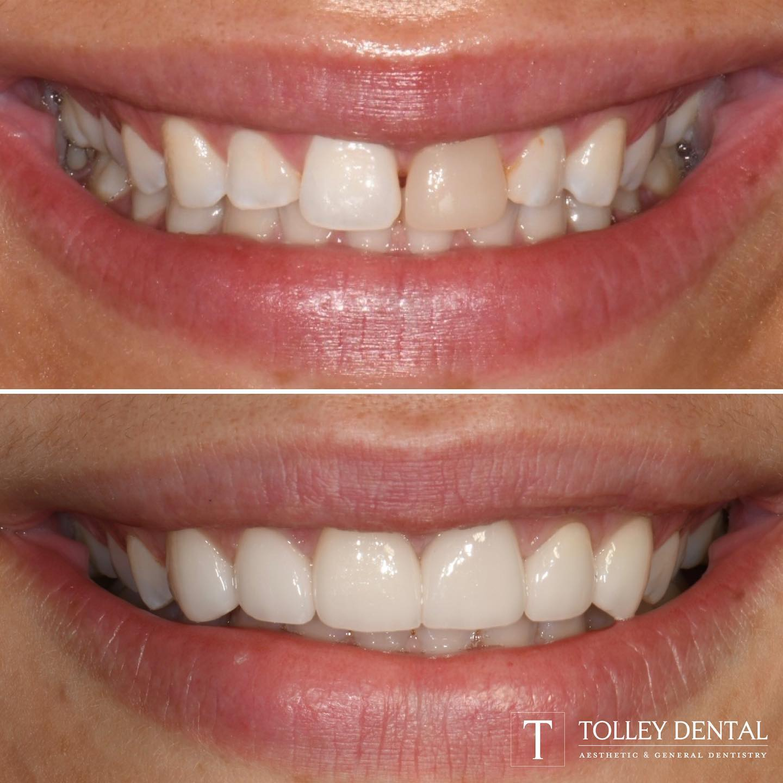 Tolley Dental of Woodstock